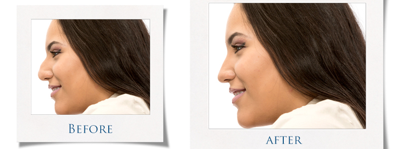 Rhinoplasty (Nose Surgery) Image | Arizona Advanced Surgery